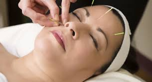 Acupuncture Lincoln |body balance acupuncture